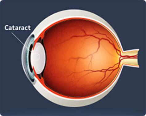 cataract surgery diagram cataract surgery cataract operation exeter