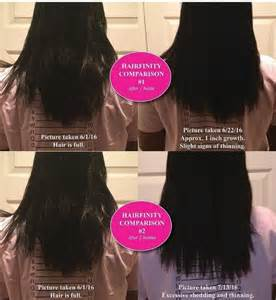 Hair Infinity Reviews Hairfinity Side Effects Ingredients Reviews