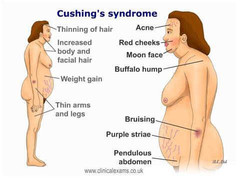 cushings disease cushing disease www pixshark images galleries with a bite