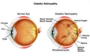 Can Keratoconus Cause Blindness Diabetes Spx Opticians Ltd