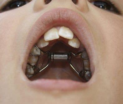 vire fangs orthodontics hayward dentist c dds