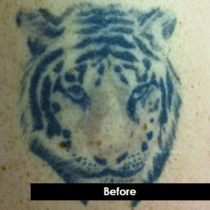tattoo removal indiana before and after laser tattoo removal photos