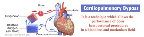 Cardiopulmonary Bypass - Risk & Complications Heart Bypass Complications