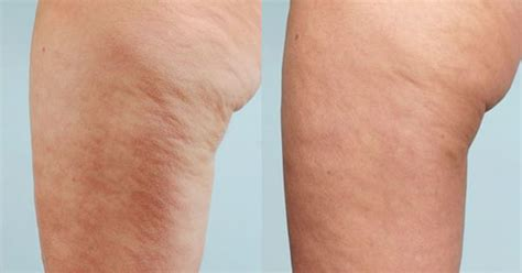 home cellulite laser before and after one session of cellulaze laser cellulite
