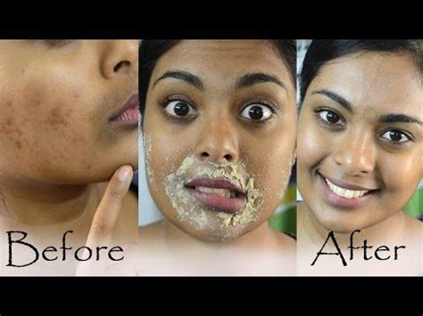 Beau Visage See Your Skins Sun Damage by How To Get Rid Of Hyperpigmentation Lip