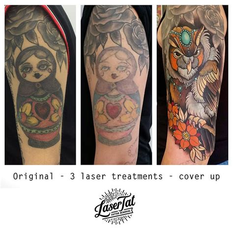 adelaide tattoo removal lasertat removal adelaide