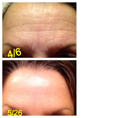 best anti wrinkle treatment 1036 best by images on