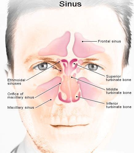 Sinus Problems After Sugar Detox by Best 25 Sinusitis Treatment Ideas On Home