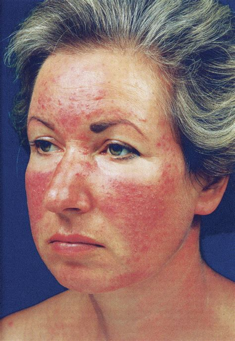 ruddy complexion pictures ruddy complexion definition image mag