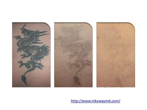 types of tattoo removal different types of removal