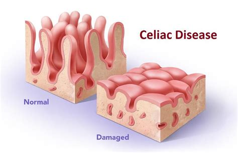 what s your tummy type celiac disease and your digestive