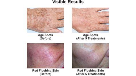 pulsed light therapy pulsed light therapy orlando associates in dermatology