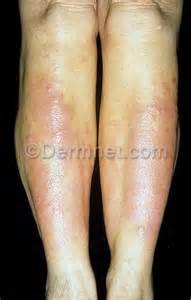 pretibia myxedema photo skin disease pictures