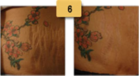 stretch marks before and after pictures of actual patients