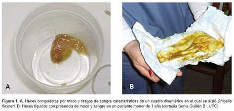 imagenes de heces blancas retos y problemas en el diagn 243 stico microbiol 243 gico en diarrea