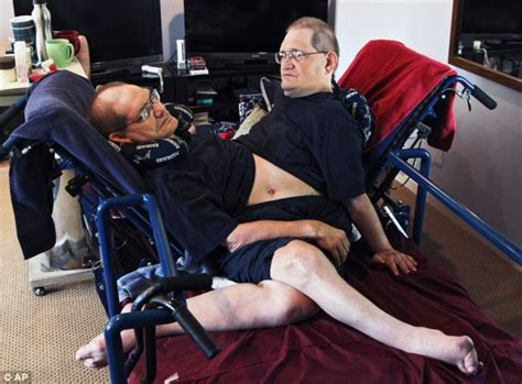 how do conjoined twins go to the bathroom ohio conjoined twins ronnie and donnie galyon 62 prepare