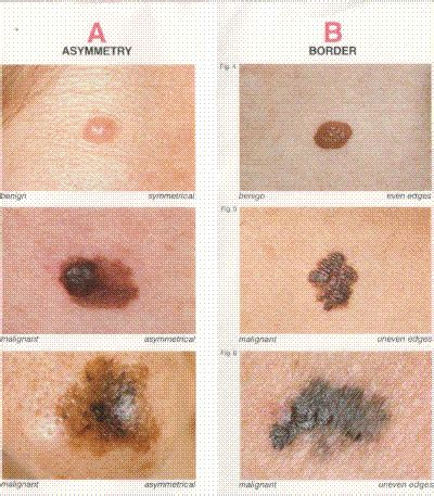 differences between malignant melanoma and a normal mole melanoma diagnosis treatment prevention pictures