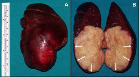 macroscopic cross section figure 3 isolated metachronous splenic metastasis from
