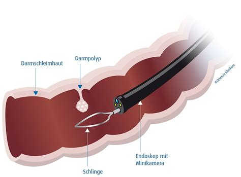 darmkrebs ohne blut im stuhl koloskopie
