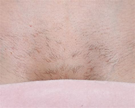 Brazilian Laser Hair Removal Pictures | full brazilian wax pictures male models picture