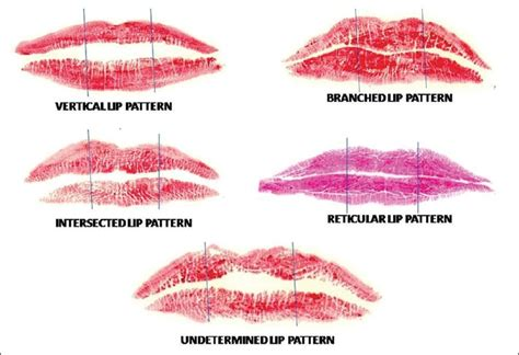 Lip Pattern Types | lips type r images