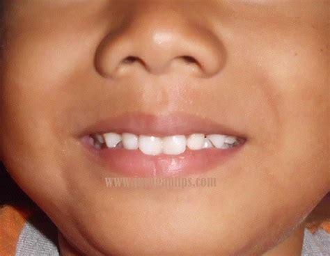 Gigi Sehat Dan Cantik 5 tips membuat gigi tak putih bersih dan cantik alami