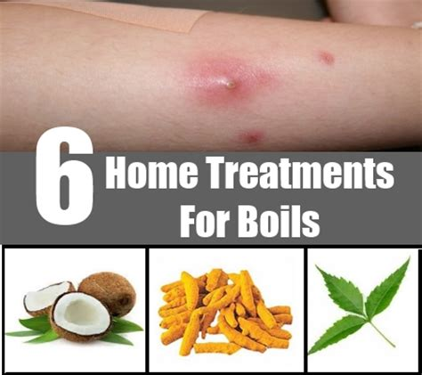 6 home treatments for boils how to get rid of boils