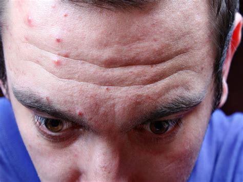 wrinkly forehead hair ways to prevent forehead wrinkles boldsky com