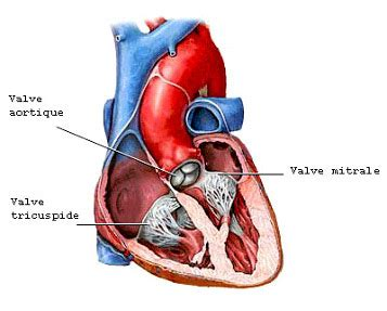 fistola interna chirurgie valvulaire chirurgie cardiovasculaire et