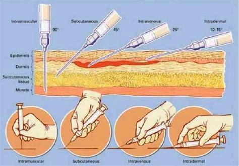 Glutax 200gs Injeksi macam macam cara penyuntikan pemutih obat suntik pemutih