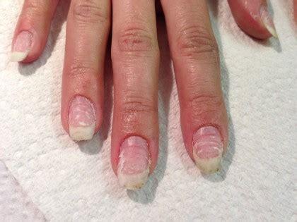 nail bed damage best damaged nails photos 2017 blue maize