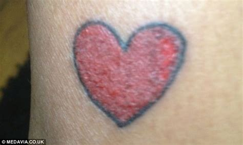 allergic to tattoo ink gets permanently shaped scar after getting a