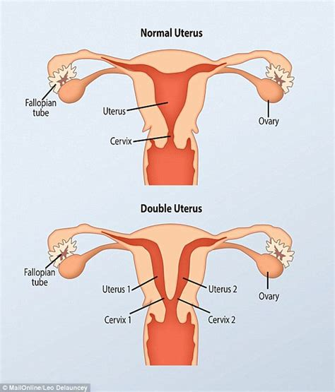 how many types of viginas are there woman with two vaginas reveals how condition affects her