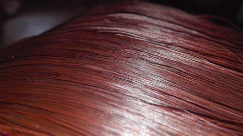 seborrea cuero cabelludo seborrea causas y remedios naturales para la dermatitis