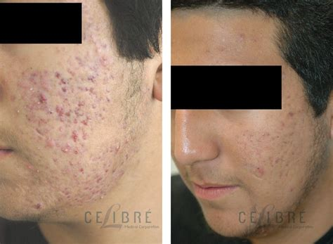 Remove Acne Scars | how to remove acne scars fast how to remove acne scars