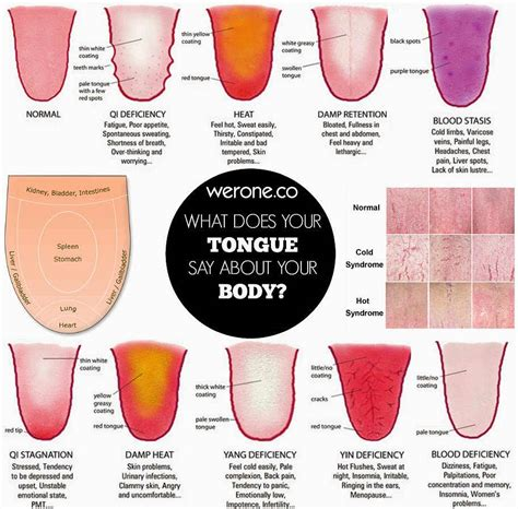 tongue color chart what does your tongue say about your health werone