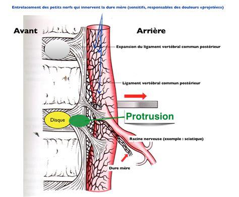 lombalgies sciatique 171 orthopedie pour tous