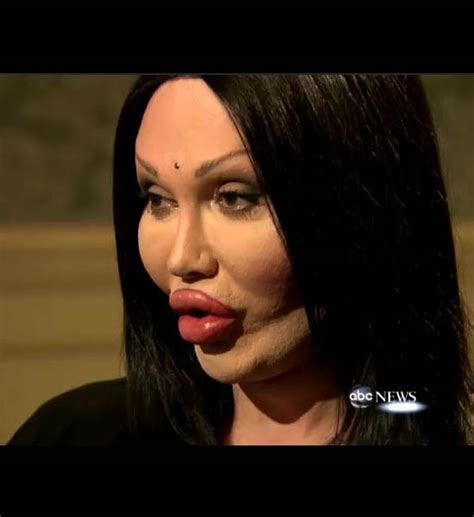 With The Most Botox by Plastic Surgery Catastrophes Mandatory