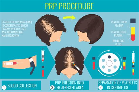 can platelet rich plasma stop hair loss and grow new hair platelet rich plasma prp therapy for hair loss la