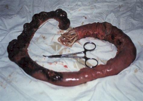parasites a widespread problem miami colonics