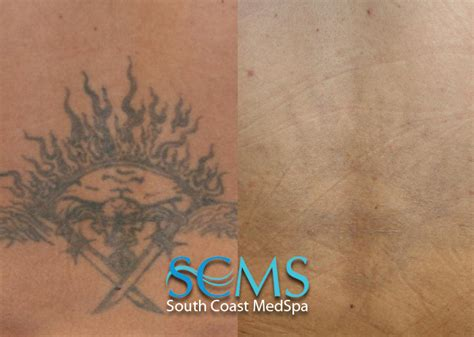 lower back tattoo removal before and after laser removal gallery before and after laser