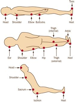 pressure ulcer locations diagram bed sore pressure sores stages treatment prevention at