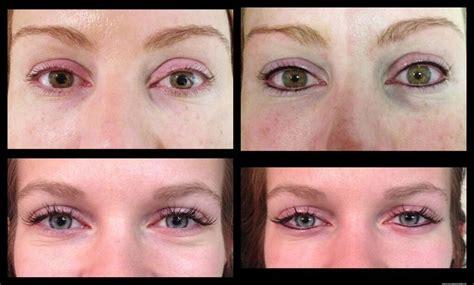 eye tattoo complications permanent eyeliner avoiding complications permanent