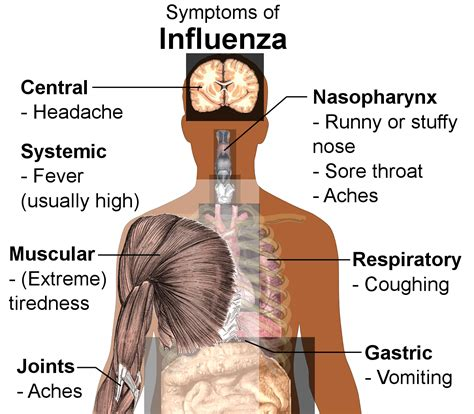 flu symptoms viral diseases of the respiratory system boundless microbiology