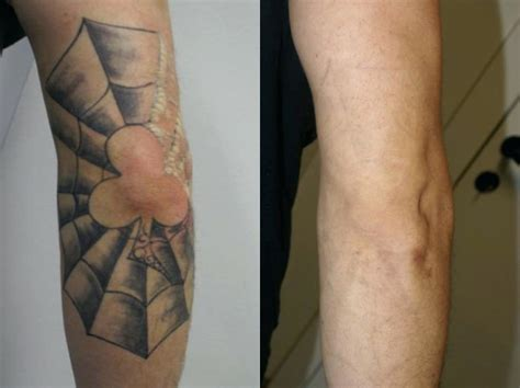 prices on tattoo removal home improvement cost of removal hairstyle