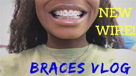 braces rubber band colors braces update new wire new color and more rubber bands