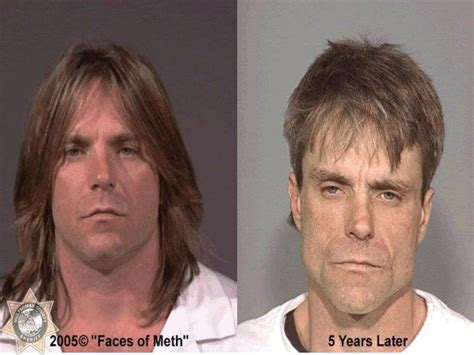 Medicine Detox Meth by 78 Best Images About Faces Of Meth On Before