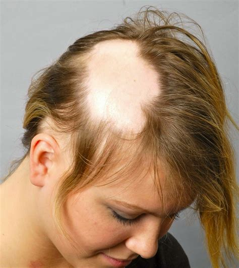 Alopecia Hair Loss In Women | what causes hair loss