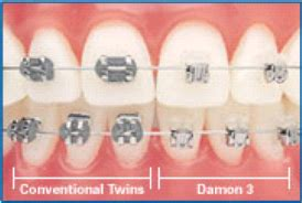 comfort dental glenwood springs damon 174 system braces pediatric dentist in glenwood