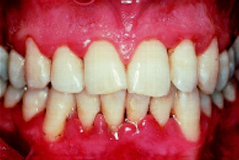 gingivitis treatment gingivitis causes symptoms treatment gingivitis